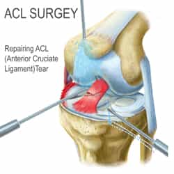 Surgery for a Torn ACL