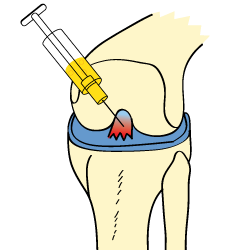 Cortisone in ACL